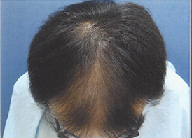 治療開始前頭頂部