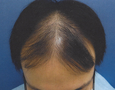 AGA治療開始前前頭部