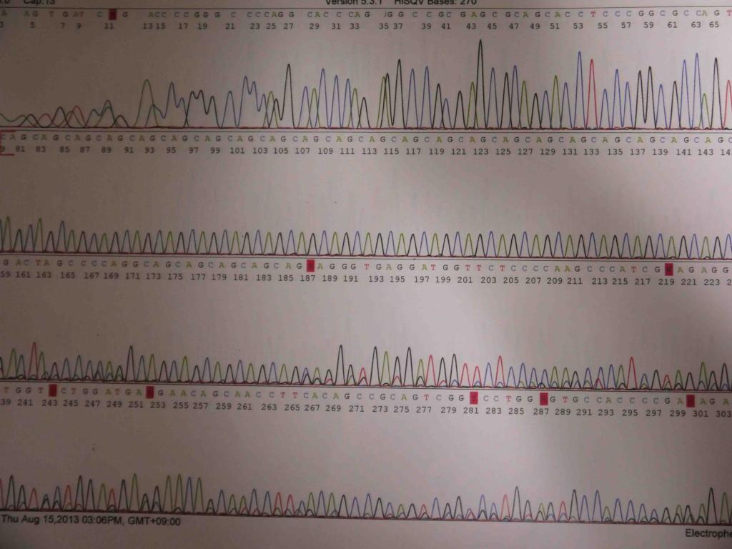 AGA遺伝子検査