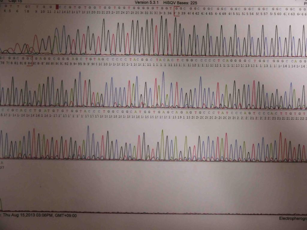 ヘアメディカルAGA遺伝子検査GGCリピート
