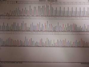 AGA遺伝子検査GGCリピート