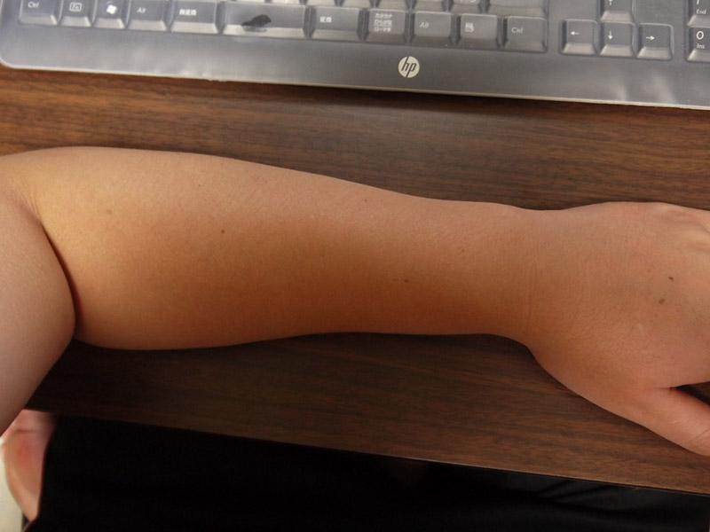 ミノキシジルタブレット副作用腕毛