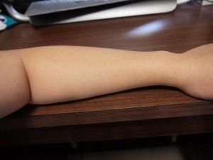 ミノキシジル副作用体毛腕