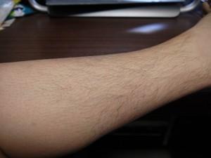 ミノキシジル副作用体毛スネ