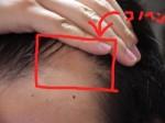 AGA治療24日目 M字の産毛と頭頂部の写真