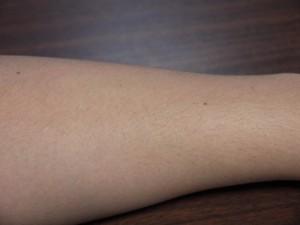 ミノキシジル副作用体毛腕毛