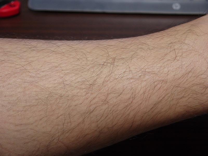 ミノキシジル副作用体毛すね毛
