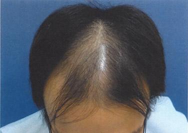 AGA治療1ヶ月目前頭部