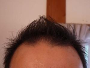 薄毛ヘアスタイルモヒカン
