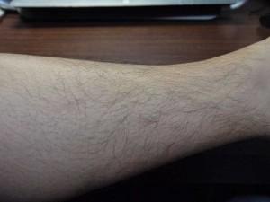 ミノキシジルタブレット副作用体毛