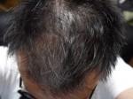 AGA治療64日目 2ヶ月間の治療経過【写真付き】