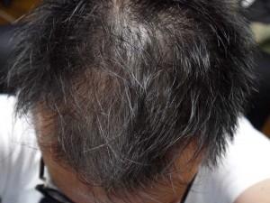 AGA治療2ヶ月目頭頂部