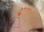 AGA治療67日目 誤って生え際の毛を剃り落としました