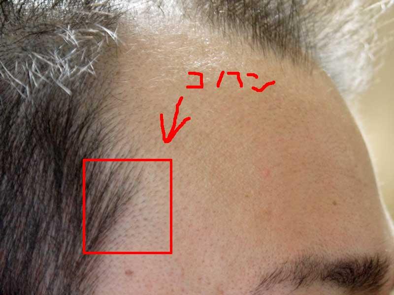 生え際産毛