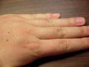 ミノキシジル副作用体毛指毛