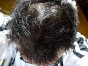 AGA治療経過写真頭頂部