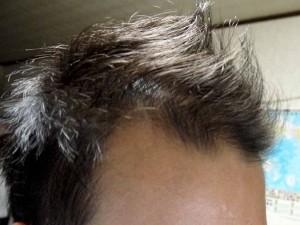 AGA治療経過写真前頭部右