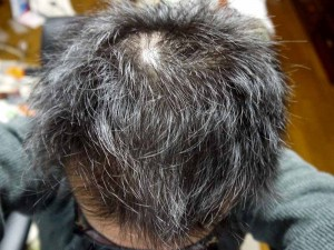 AGA治療経過写真2ヶ月半頭頂部