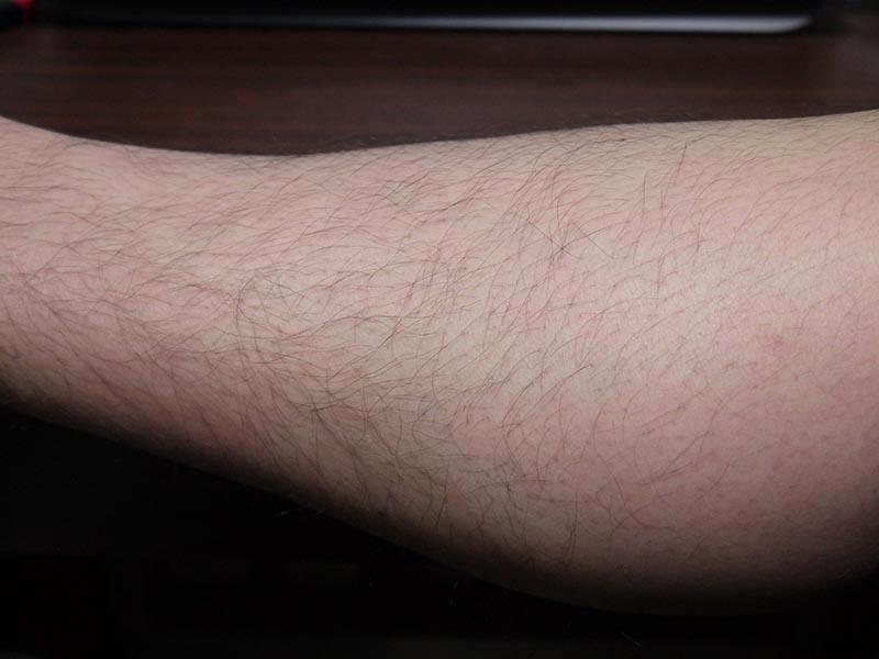 ミノキシジルタブレット副作用体毛スネ