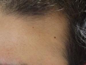 ポラリス使用2ヶ月生え際産毛