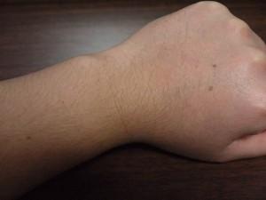 ミノキシジルタブレット副作用体毛腕毛