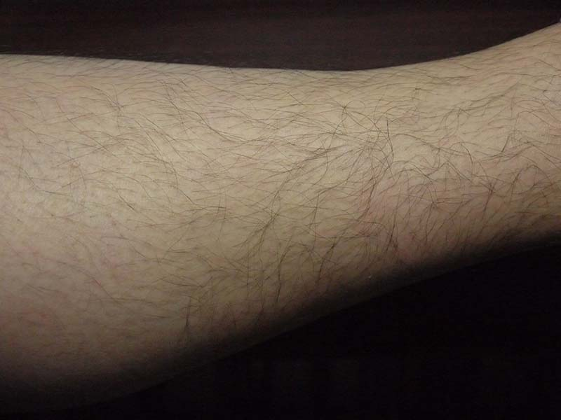ミノキシジルタブレット副作用体毛すね毛