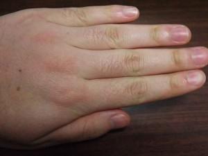 ミノキシジルタブレット副作用体毛指毛