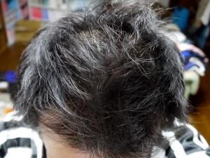 ミノキシジルタブレット中止2週間頭頂部