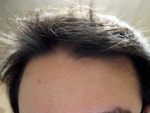 ミノタブ中止後発毛状態前頭部