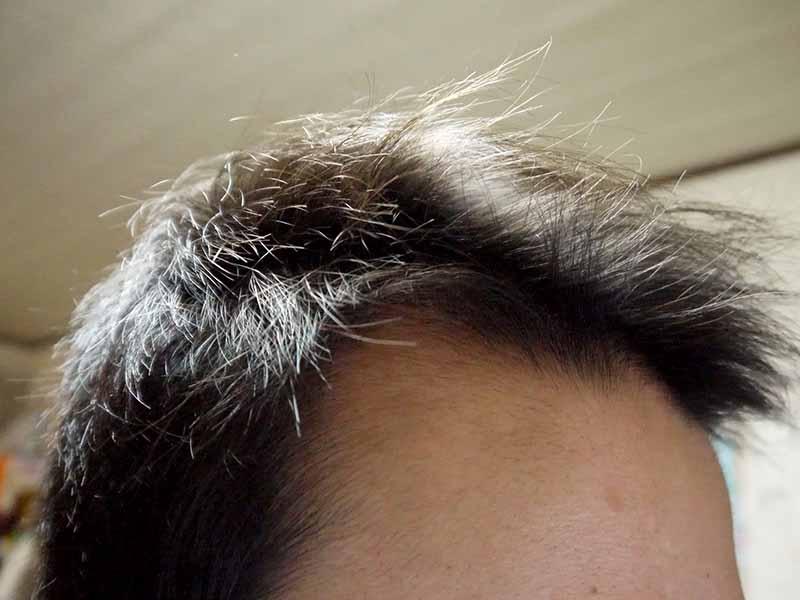 ミノタブ中止後発毛状態生え際右