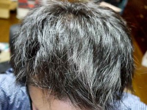 ミノタブ中止後発毛状態頭頂部