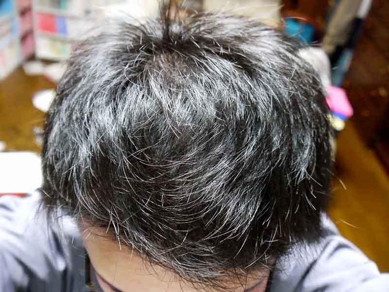 AGA治療4ヶ月目頭頂部