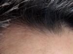 AGA治療153日目 ミノタブ中止後の髪の変化