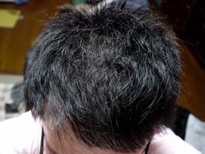 AGA治療7ヶ月目頭頂部