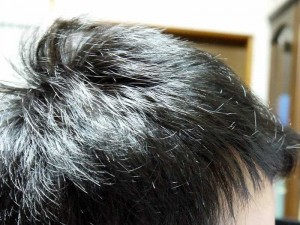 AGA治療8ヶ月目右側頭部
