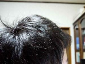 AGA治療9ヶ月目側頭部右