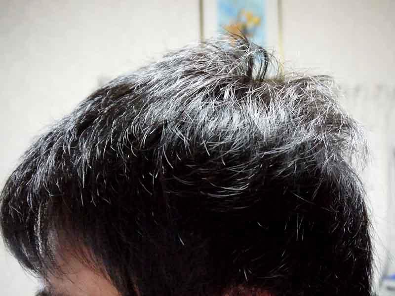 AGA治療9ヶ月目側頭部左