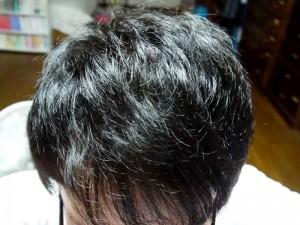 AGA治療9ヶ月目頭頂部