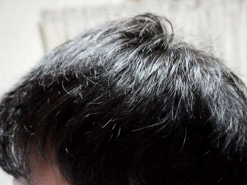 AGA治療10ヶ月目左側頭部