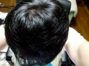 AGA治療11ヶ月目頭頂部