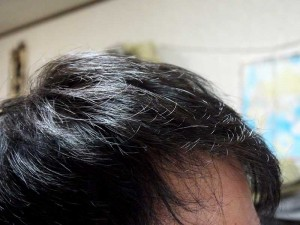 AGA治療11ヶ月目前頭部右