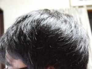 AGA治療11ヶ月目側頭部左