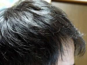 AGA治療11ヶ月目側頭部右