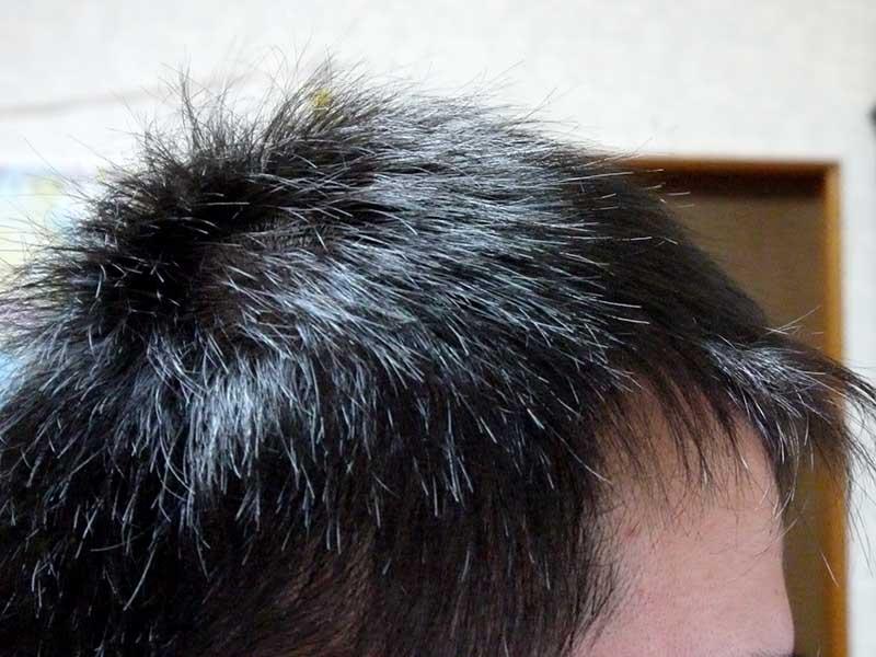 AGA治療1年目右側頭部