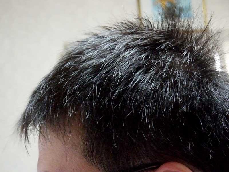 AGA治療1年目左側頭部