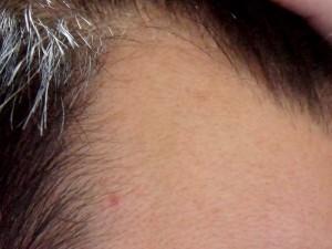 ミノタブ2ヶ月目M字右