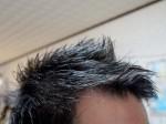 AGA治療369日目 髪をバッサリ切りました