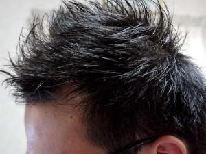 薄毛短髪生え際左