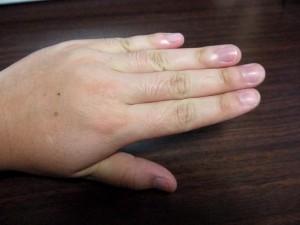 ミノキシジルタブレット指毛