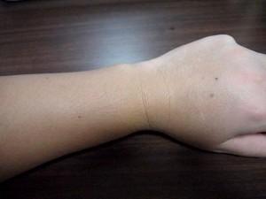 ミノキシジルタブレット副作用体毛腕